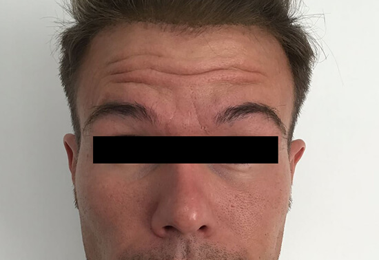 Botox in Hornchurch, Essex | Botox prices Essex | Wrinkle free