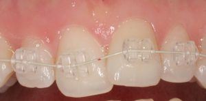 Clear brackets with tooth coloured wires