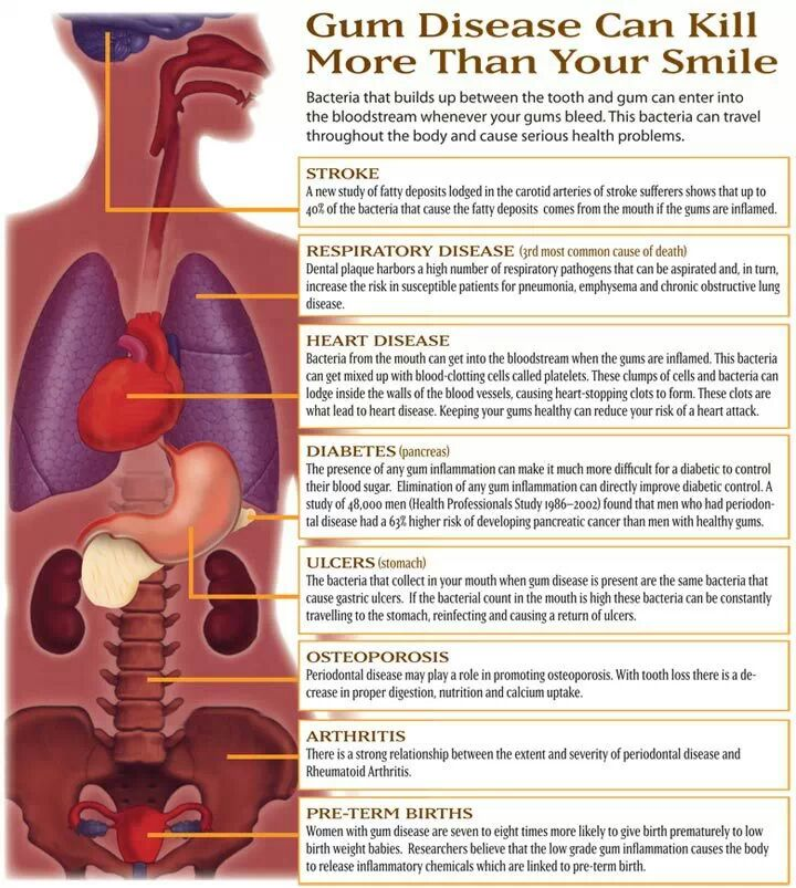Complications of gum disease