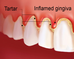 red and inflamed gums