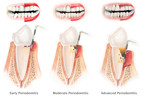 dreaming of periodontitis