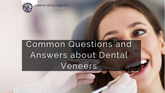 Common Questions and Answers about Dental Veneers