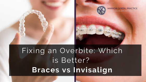 Fixing an Overbite: Which is Better? Braces vs Invisalign